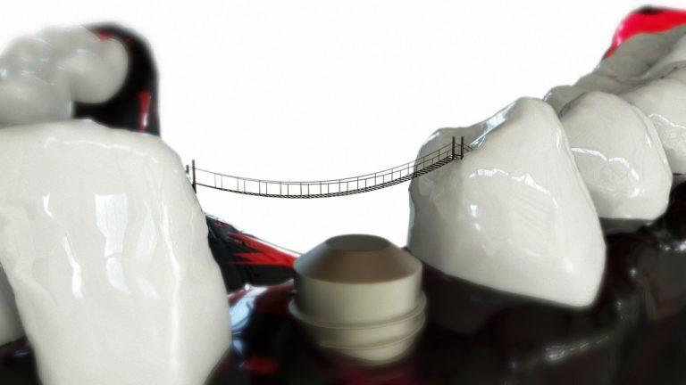 Implantate – Was Sie darüber wissen müssen